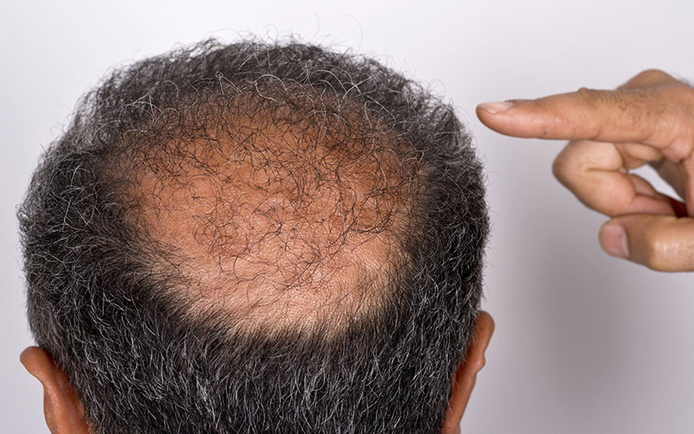 What They Don't Tell You About Hair Transplant Procedures